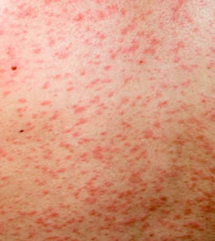 Measles outbreak hits Auckland school