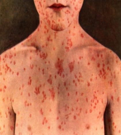Measle outbreak in Waikato