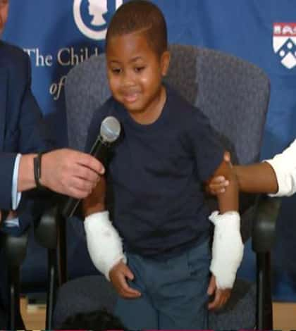 Double hand transplant performed on child