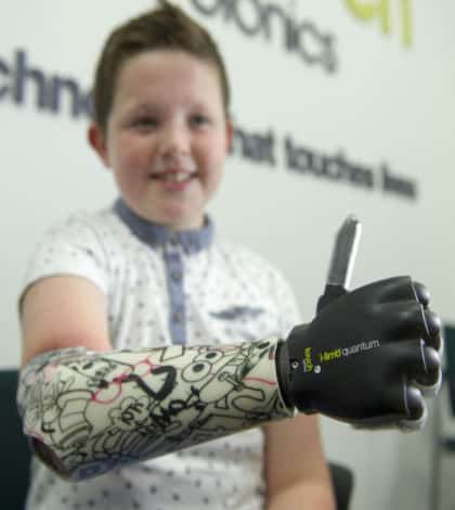 Youngest person to be fitted with a bionic hand