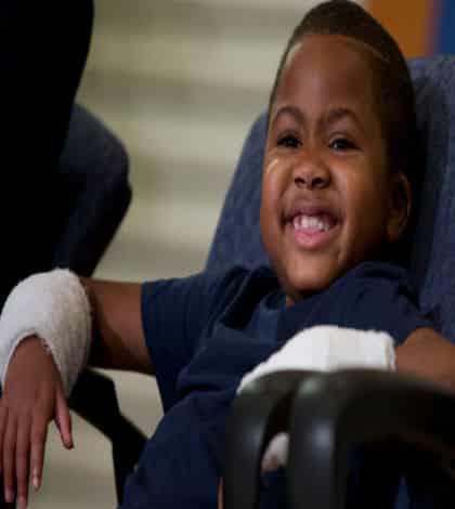 9 year old boy gets hand transplant