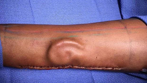 Doctors grow new ear on an arm